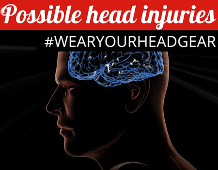 Possible Head Injuries
